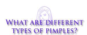 typesofpimples